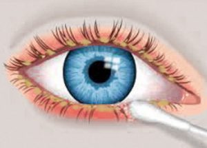 blepharitis-inflammation0of-eyelids