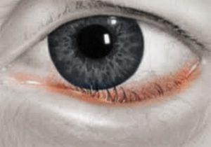 entropion-inversion-lower-eyelid