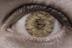 very-dry-eye-with-cracking-cornea